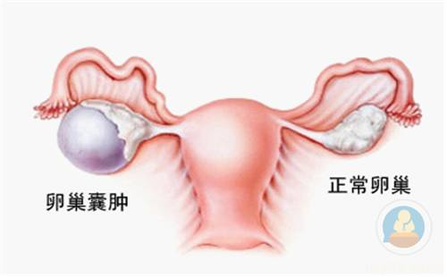 女性最不容忽視的器官--卵巢