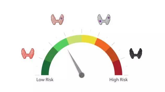 都市白领杀手!甲状腺疾病风险因素解析!